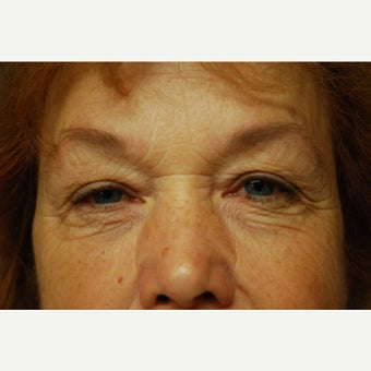 Lower Eyelid Surgery before 1641354