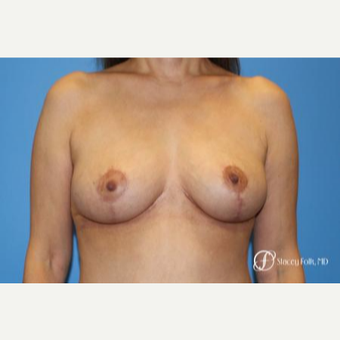 55-64 year old woman treated with Breast Lift after 2717356