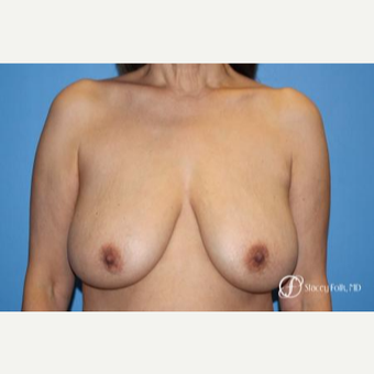 55-64 year old woman treated with Breast Lift before 2717356