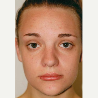 17 or under year old woman treated with Rhinoplasty after 3406166