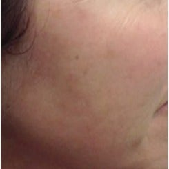 45-54 year old woman treated with Age Spots Treatment after 2442704