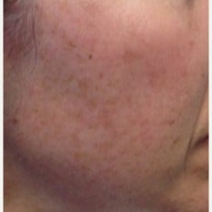 45-54 year old woman treated with Age Spots Treatment before 2442704