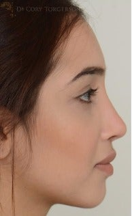 18-24 year old woman treated with Rhinoplasty after 3264344