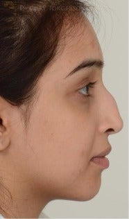 18-24 year old woman treated with Rhinoplasty before 3264344