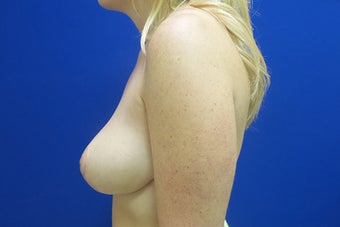 Breast Reduction after 3258594