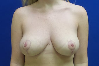 Breast Reduction 3258594
