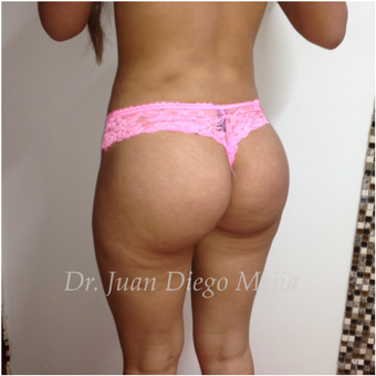 25-34 year old woman treated with Butt Implants after 2692711