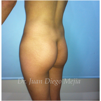 25-34 year old woman treated with Butt Implants before 2692711