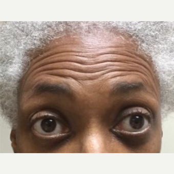 55-64 year old woman treated with Botox before 3584598