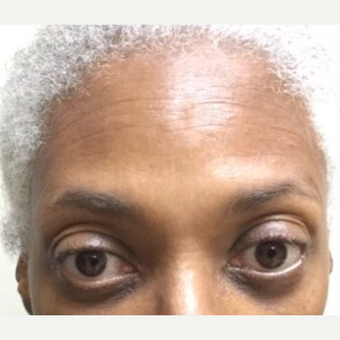 55-64 year old woman treated with Botox after 3584598
