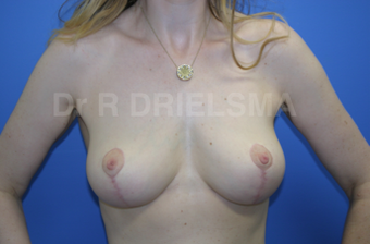 Breast Lift / Breast Reduction:  42 yo woman with pendulous deflated breasts after 1468912