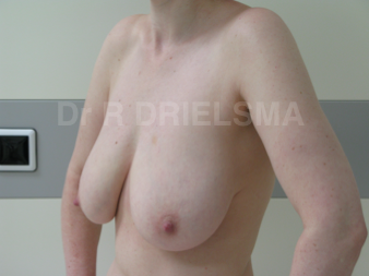 Breast Lift / Breast Reduction:  42 yo woman with pendulous deflated breasts 1468912
