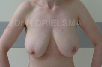 Breast Lift / Breast Reduction:  42 yo woman with pendulous deflated breasts before 1468912