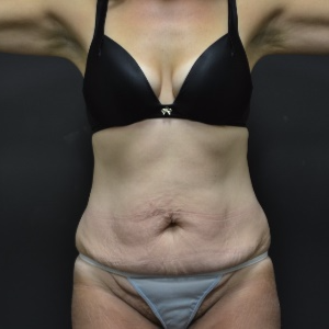 45-54 year old woman treated with Tummy Tuck before 3163236