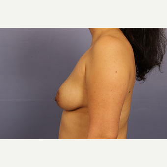 35-44 year old woman treated with Breast Lift with Implants before 3110601