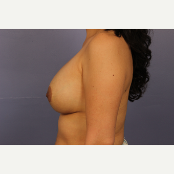 35-44 year old woman treated with Breast Lift with Implants after 3110601