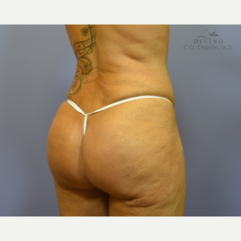 45-54 year old woman treated with Butt Implants after 3329536
