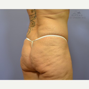 45-54 year old woman treated with Butt Implants before 3329536