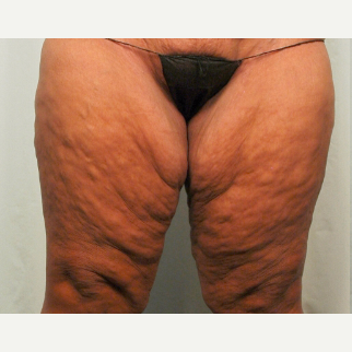 45-54 year old woman treated with Thigh Lift before 2735889