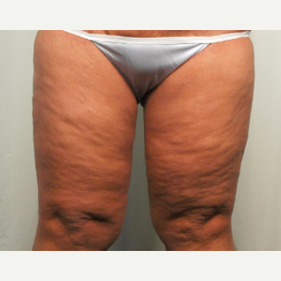45-54 year old woman treated with Thigh Lift after 2735889