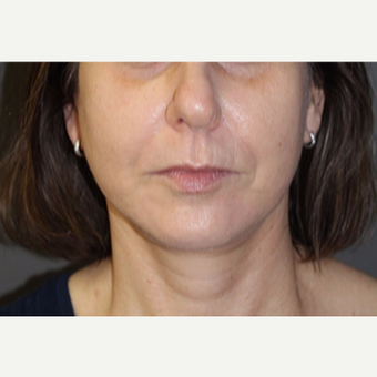 45-54 year old woman treated with Juvederm after 2685030
