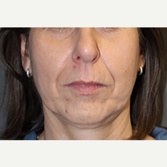 45-54 year old woman treated with Juvederm before 2685030