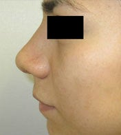 Rhinoplasty after 2993726