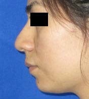Rhinoplasty before 2993726