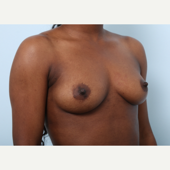 Breast Augmentation before 3425252
