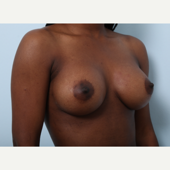 Breast Augmentation after 3425252