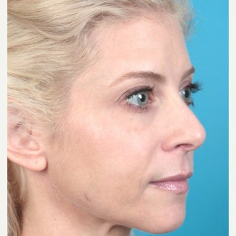 25-34 year old woman treated with Botox after 2217378