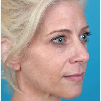 25-34 year old woman treated with Botox before 2217378
