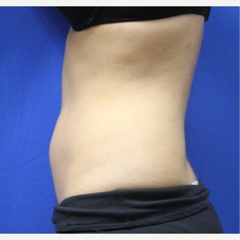 25-34 year old woman treated with SculpSure after 2422980