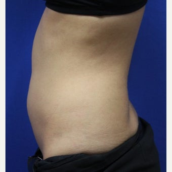 25-34 year old woman treated with SculpSure before 2422980