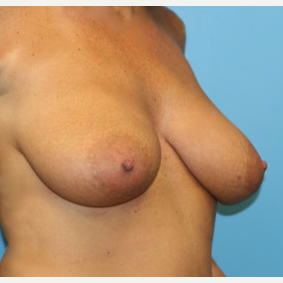 48 year old woman treated with Breast Lift before 3140920