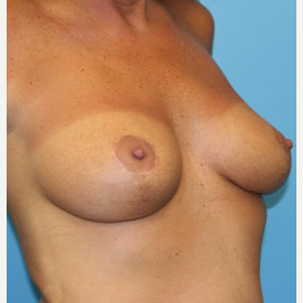 48 year old woman treated with Breast Lift after 3140920