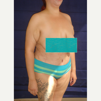 34 year old woman treated with Tummy Tuck after 3738136