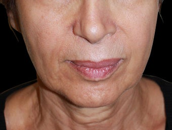 Face lift with neck lift before 1218230