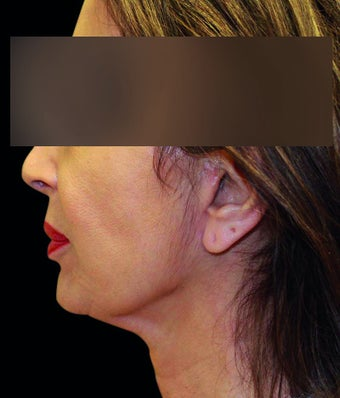 Face lift with neck lift 1218230