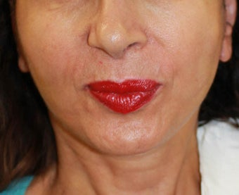 Face lift with neck lift after 1218230