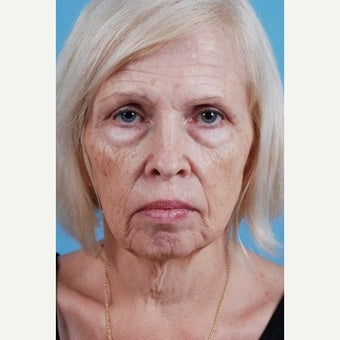 55-64 year old woman treated with a Facelift before 1599576