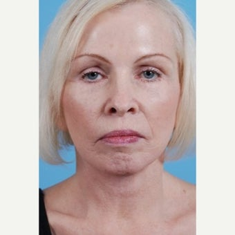 55-64 year old woman treated with a Facelift after 1599576