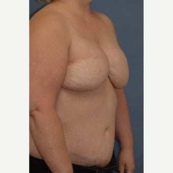 Delayed Breast Reconstruction with Free Ms TRAM Flap 1858950