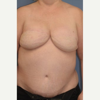 Delayed Breast Reconstruction with Free Ms TRAM Flap after 1858950