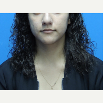 18-24 year old woman treated with Rhinoplasty before 3704503