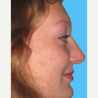 Rhinoplasty after 3814260