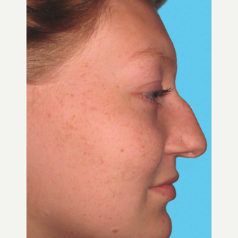 Rhinoplasty before 3814260