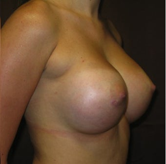 23 year old woman wanted to enhance her breast size