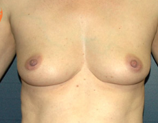 Breast Implants before 3545007