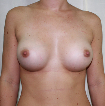 Breast Augmentation after 1687311